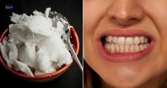 خواص رغن نارگیل برای دندان