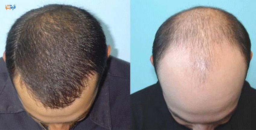 پیوند و کاشت مو چه عوارضی دارد؟