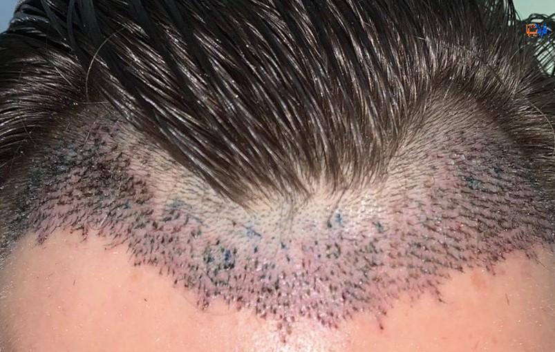 انواع کاشت مو