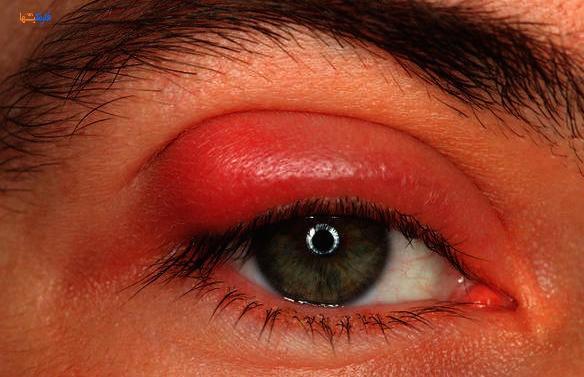 درمان تبخال چشم