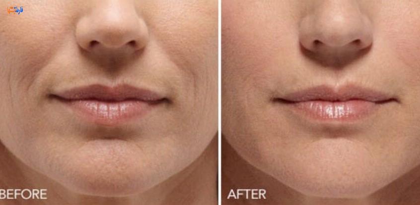 روش طبیعی برای از بین بردن خط لبخند