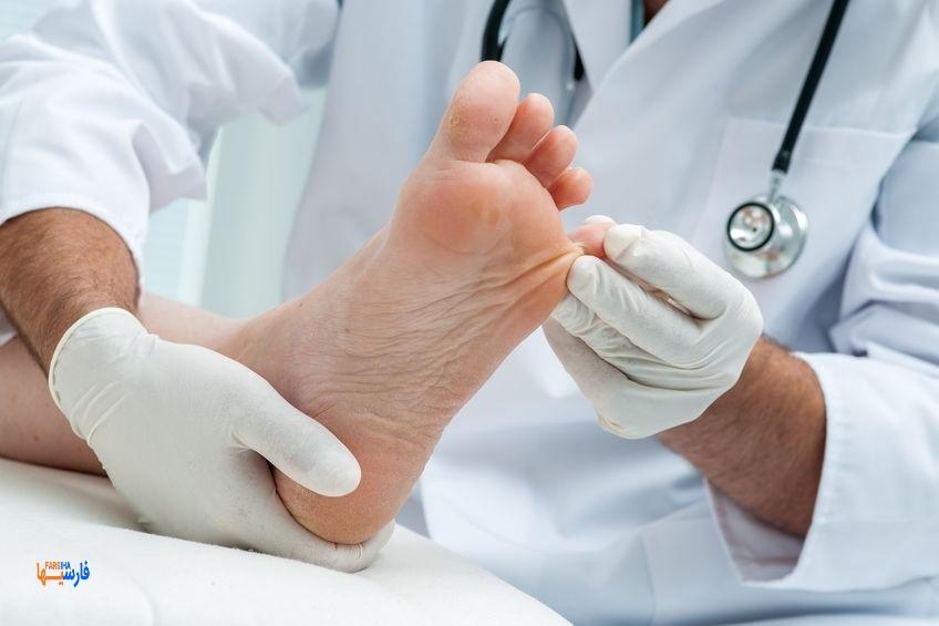 علائم پای دیابتی